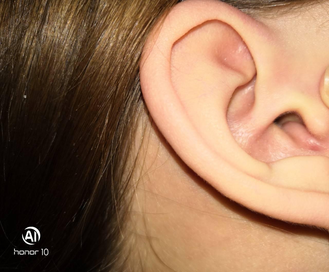 У ребенка покраснения и припухлость уха. почему у ребенка красное ухо снаружи и внутри
