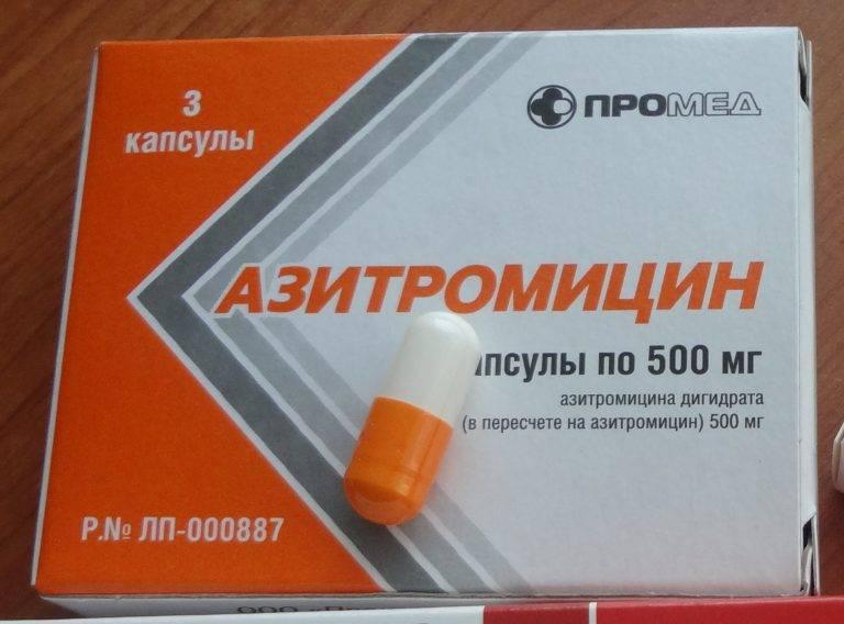 какие таблетки пить при ангине