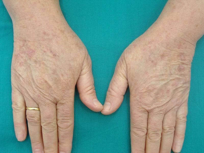 Что делать при возникновении лучевого дерматита?