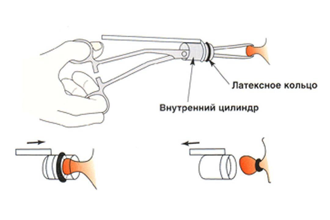 Удаление геморроя лазером: преимущества, показания, проведение, результат