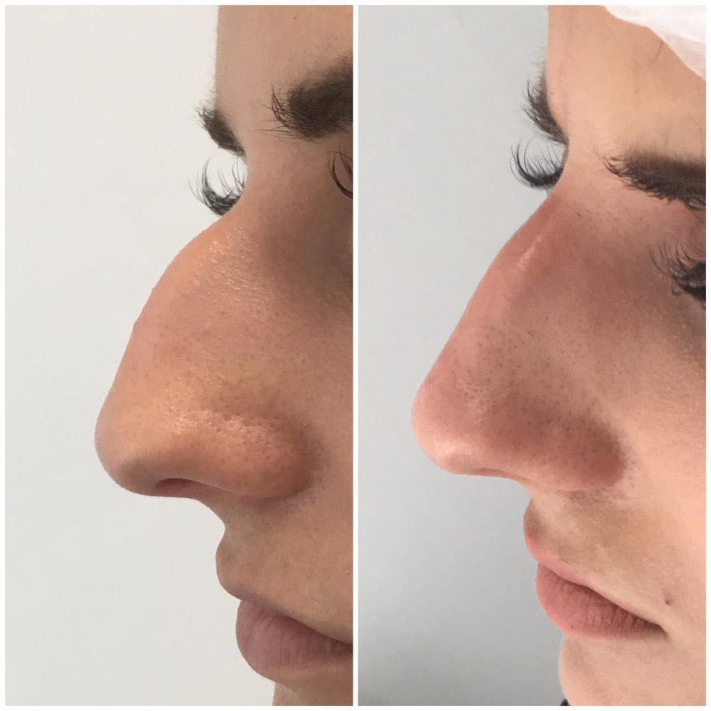 можно ли уменьшить нос без операции