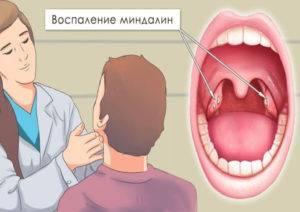 Почему при тонзиллите увеличиваются лимфоузлы?