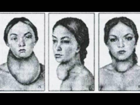 Гиперплазия перешейка щитовидной