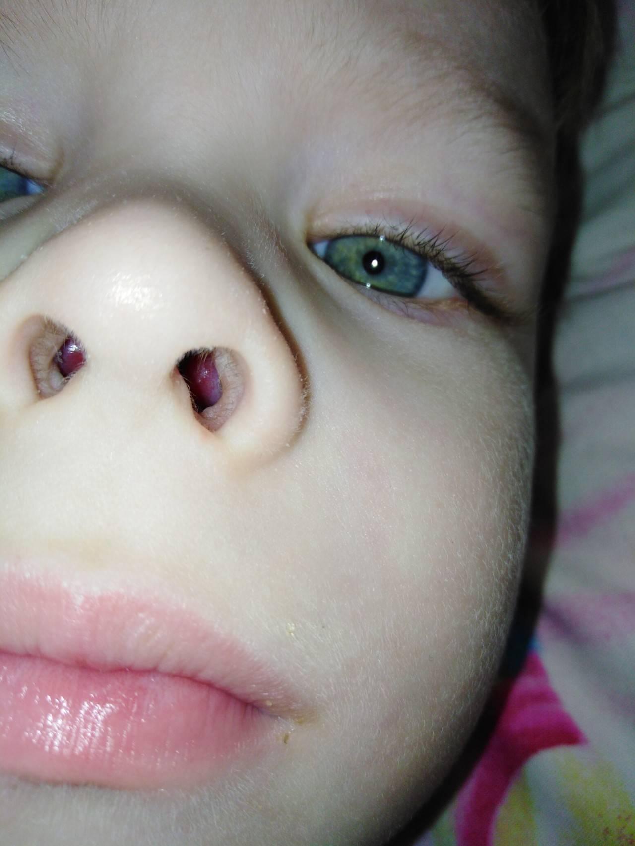 Как снять отек слизистой носа у детей: препараты и рекомендации