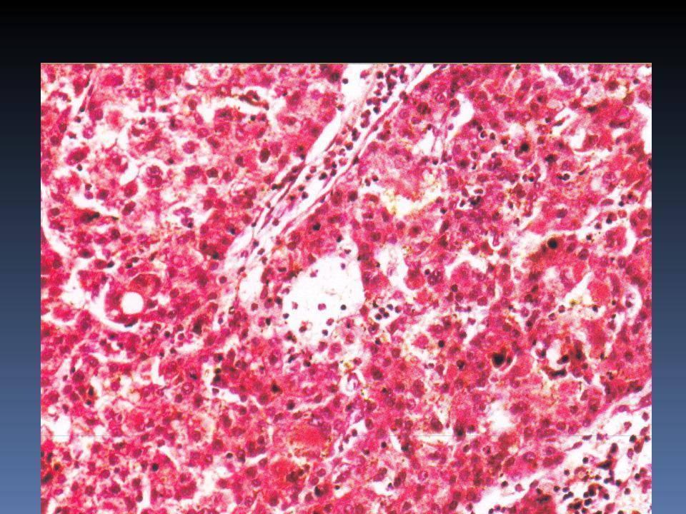 Гепатоцеллюлярный рак печени: прогноз жизни, симптомы и лечение