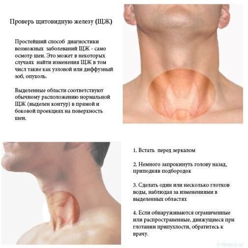 Основные заболевания щитовидной железы
