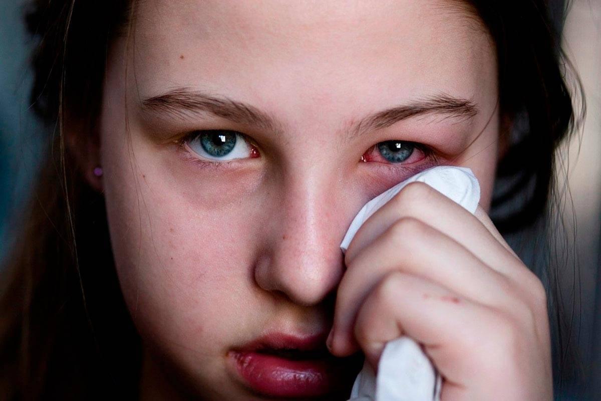 зуд в носу лечение