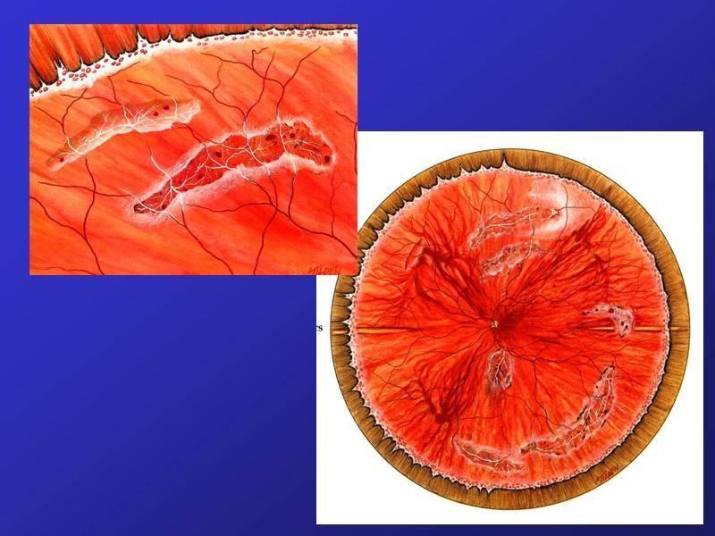 Периферическая витреохориоретинальная дистрофия (пвхрд) сетчатки