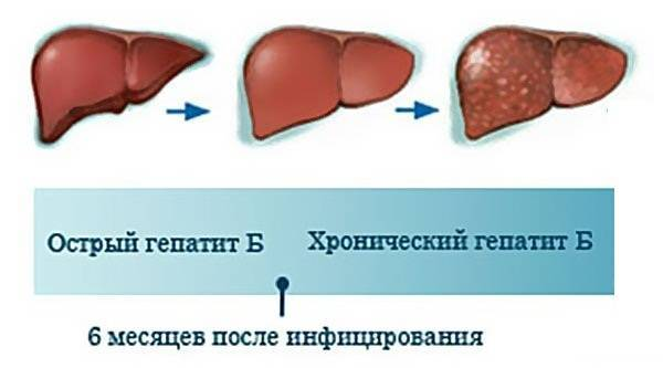острый гепатит в лечение