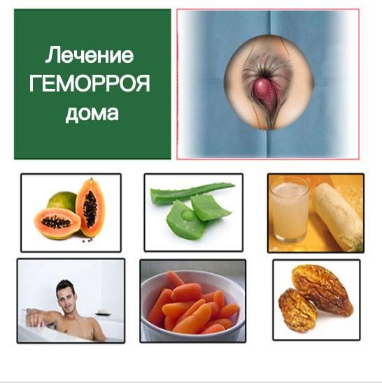 Лечение геморроя вдомашних условиях народными методами