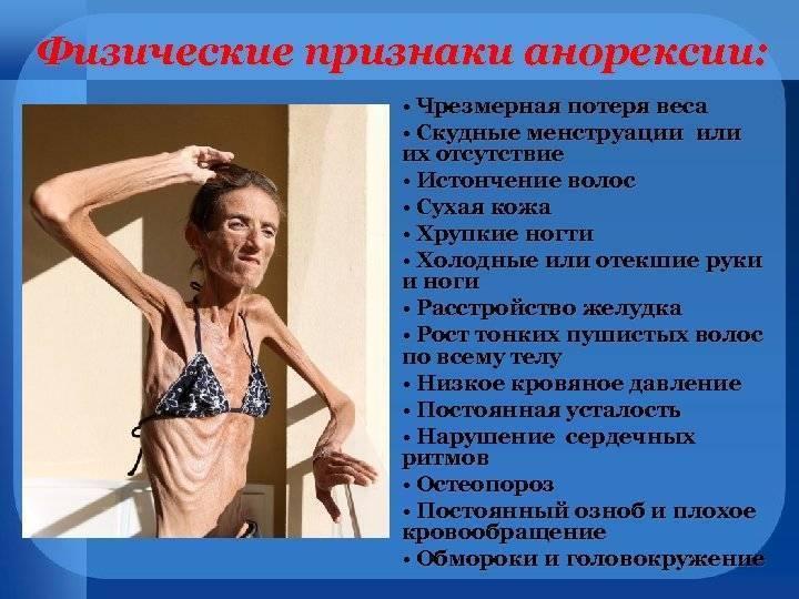 первые признаки анорексии