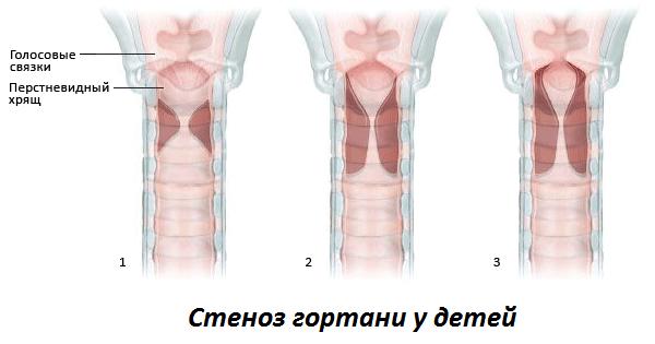 папилломатоз гортани причины