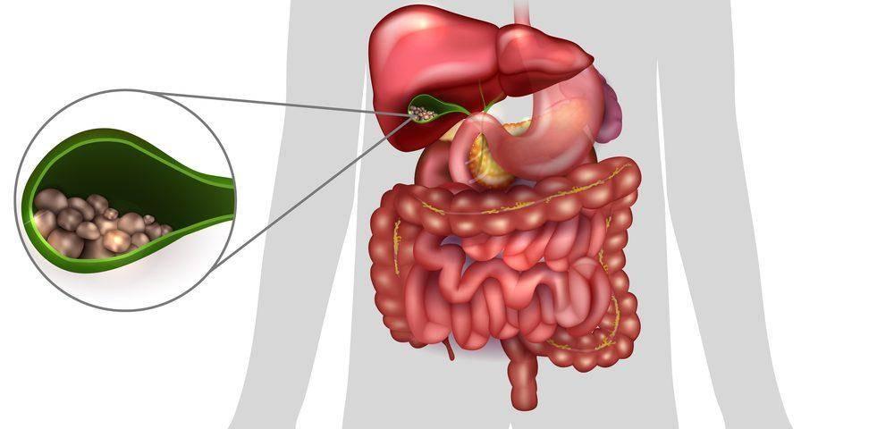 Какие антибиотики следует применять для лечения воспаления желчного пузыря