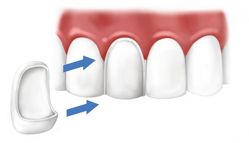 Виниры на зубы: разновидности, преимущества, цены и отзывы