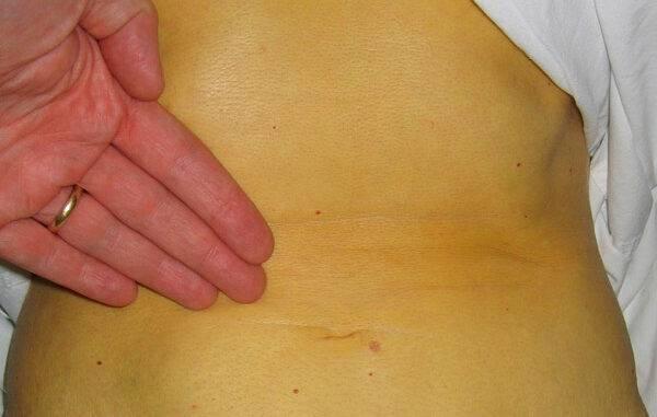 Пути и способы заражения гепатитом в