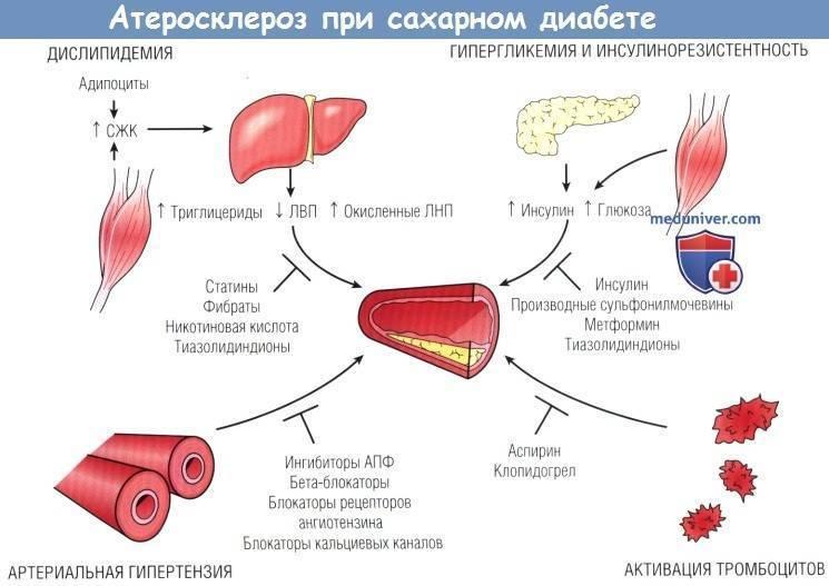 статины и сахарный диабет 2 типа