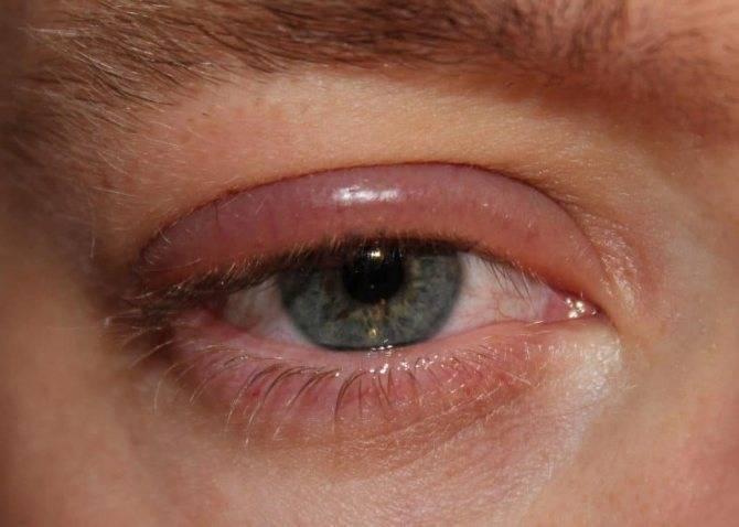 Причины и лечение кандидоза глаз