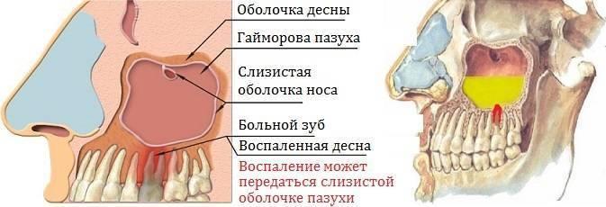 Методы эффективного лечения одонтогенного гайморита
