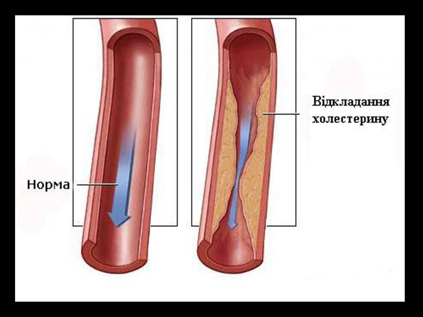 Удаление холестериновых бляшек из сонных артерий