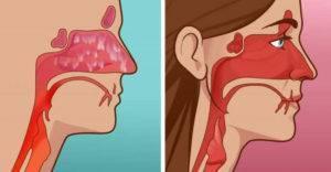 при гайморите нос дышит или нет