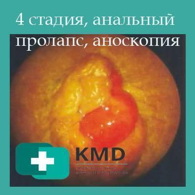 Геморрой 3 стадии: фото, симптомы, лечение без операции дома, отзывы