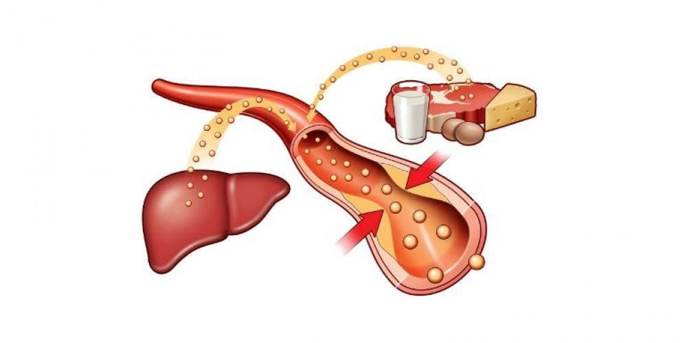 Как понизить уровень холестерина в крови