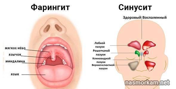 воспаление миндалины с одной стороны лечение