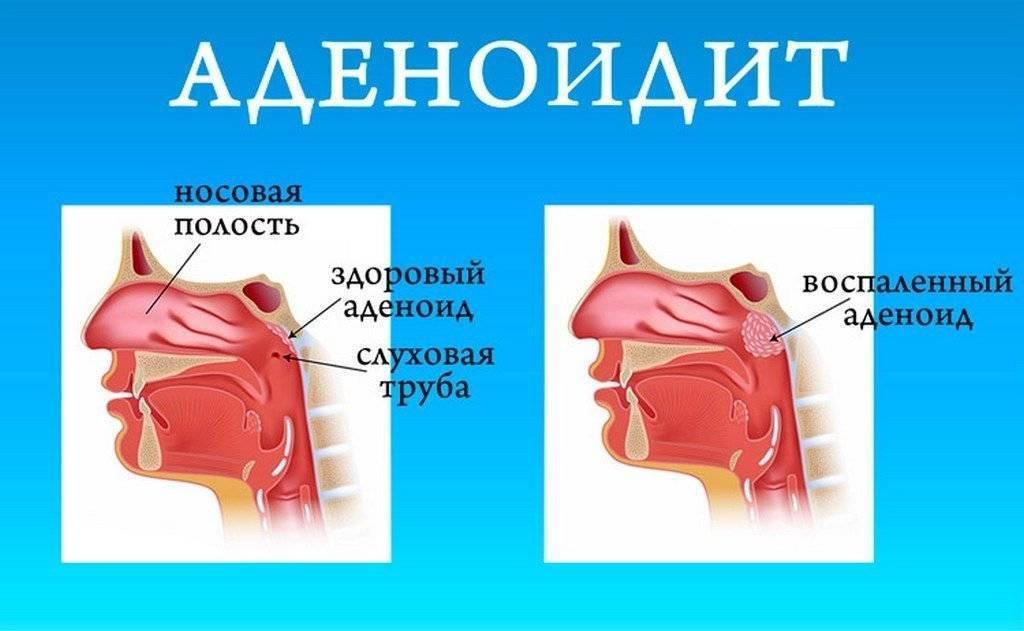 Аденоиды у детей: диагностика воспаления, основные симптомы и варианты лечения (90 фото)