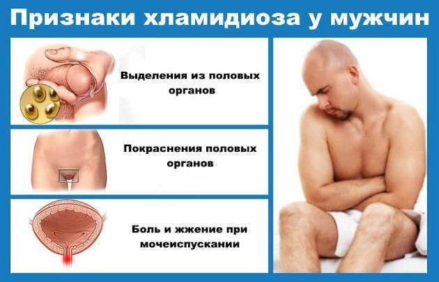 хламидиоз у мужчин