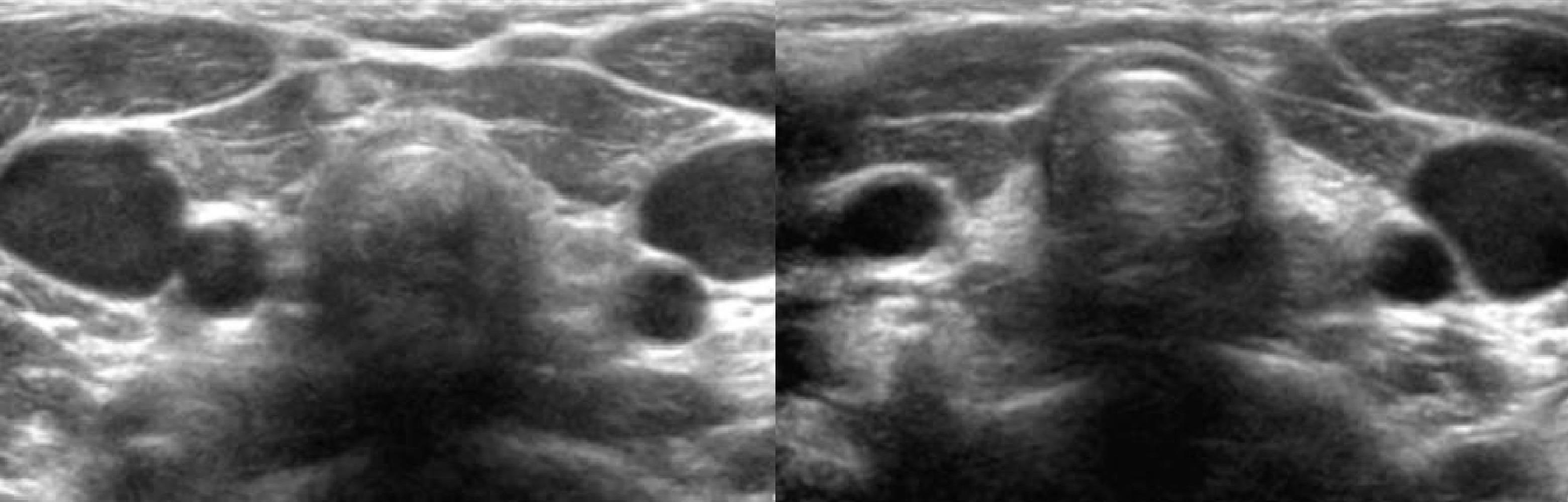 Лечение гипоплазия щитовидной железы что это такое как лечить