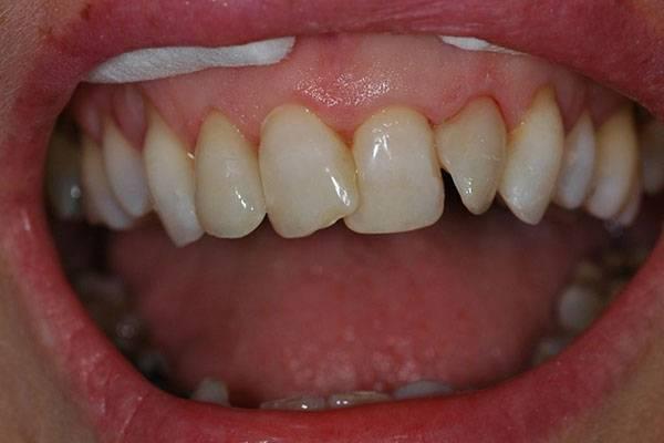 выравнивание передних зубов