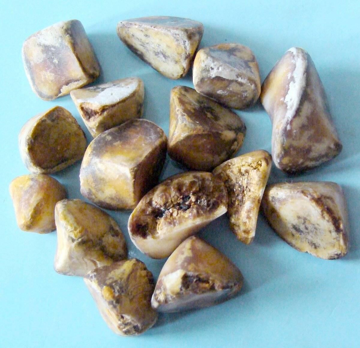 Желчнокаменная болезнь (калькулёзный холецистит). причины, симптомы, современная диагностика и эффективное лечение камней в желчном пузыре.