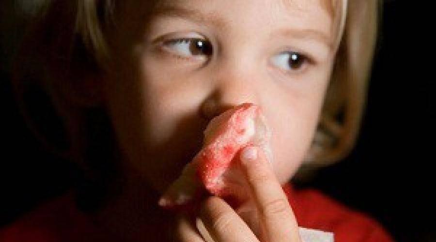 Сопли при гайморите: причины появления, методы лечения