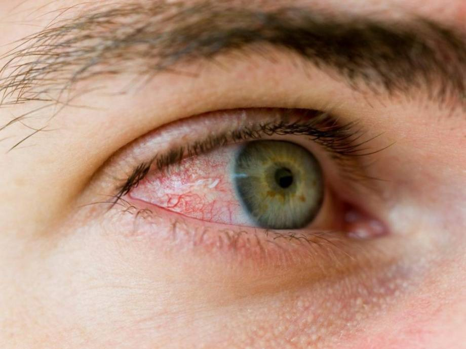 почему после бани красные глаза