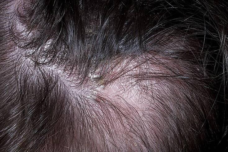 Себорейный дерматит волосистой части головы у взрослых и детей