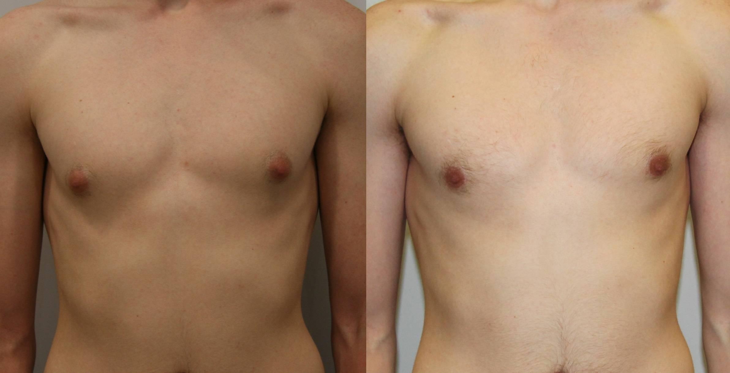 Признаки и лечение мастопатии у мужчин пожилого возраста и молодых