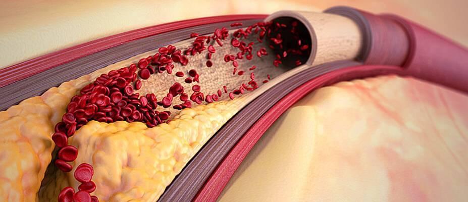 холестериновые бляшки и тромбы что это