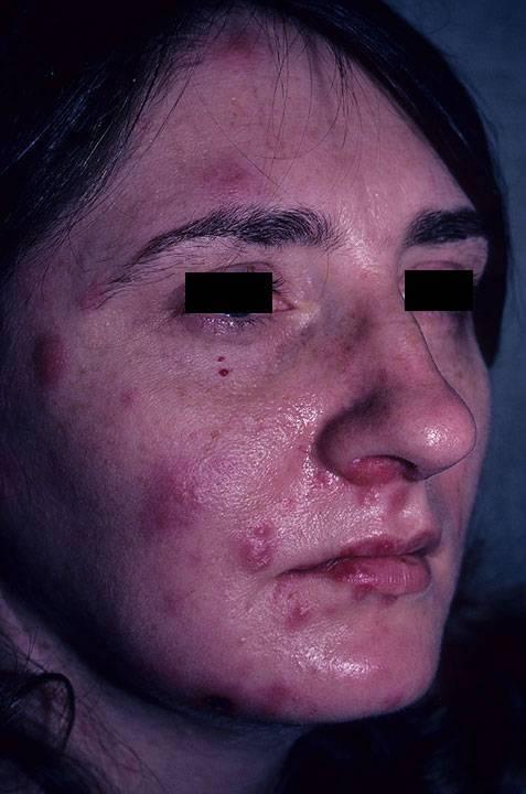 Как бороться с герпесом на лице. герпес на лице: общая характеристика, описание симптомов, методы лечения