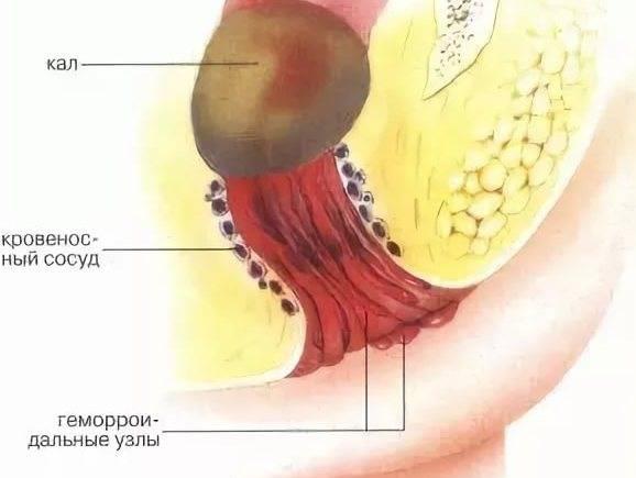 Геморрой боли внизу живота кишечник
