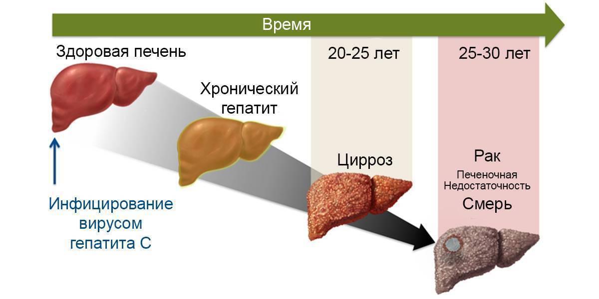 хронический гепатит с минимальной степенью активности