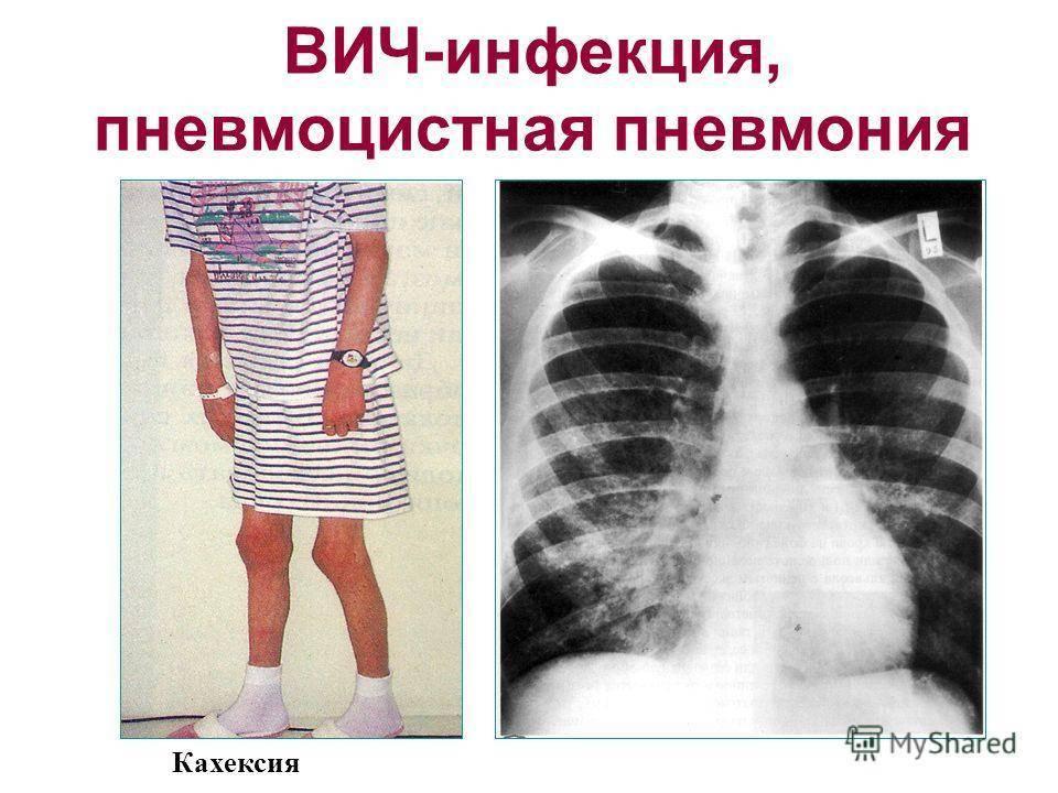 Пневмоцистоз — большая медицинская энциклопедия