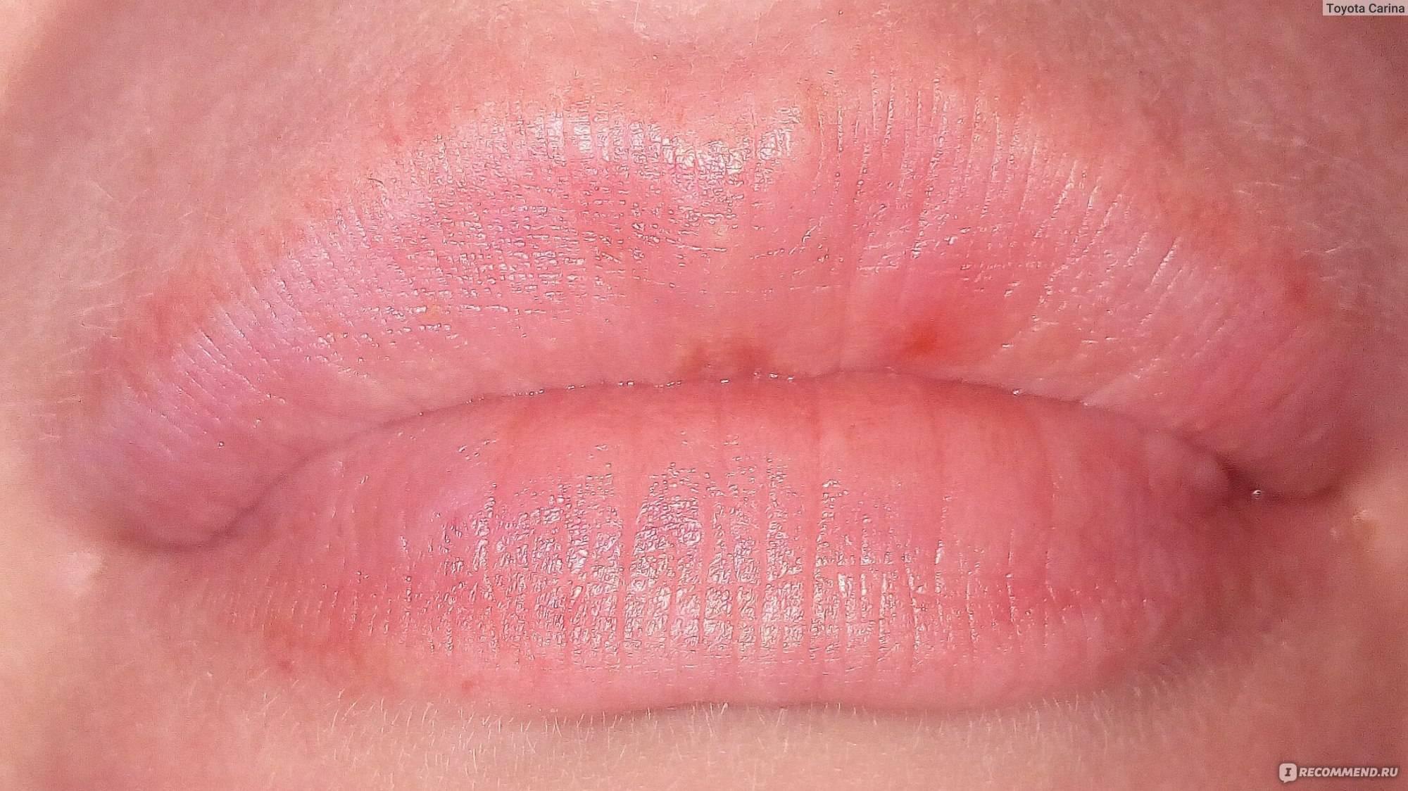 Герпес на губах - причины, симптомы, лечение, профилактика и средства