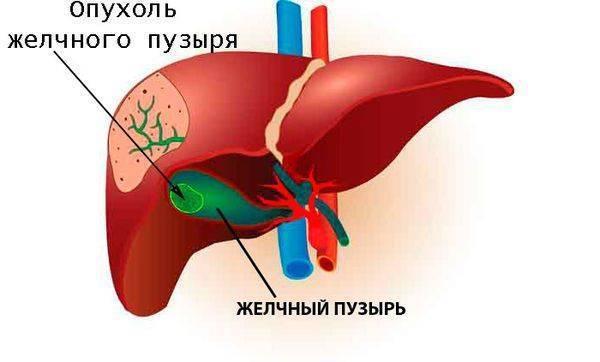Рак желчного пузыря: особенности развития