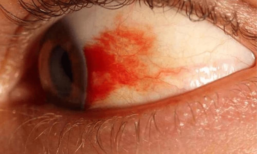 Что делать если лопнул сосуд (капилляр) в глазу у ребенка (младенца) и почему