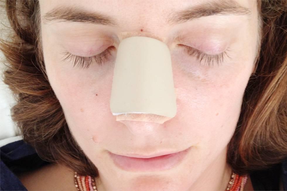 Болячки в носу: причины боли, лечение мазями и народными средствами