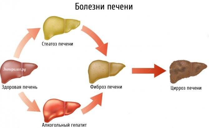 стеатоз печени 1 степени