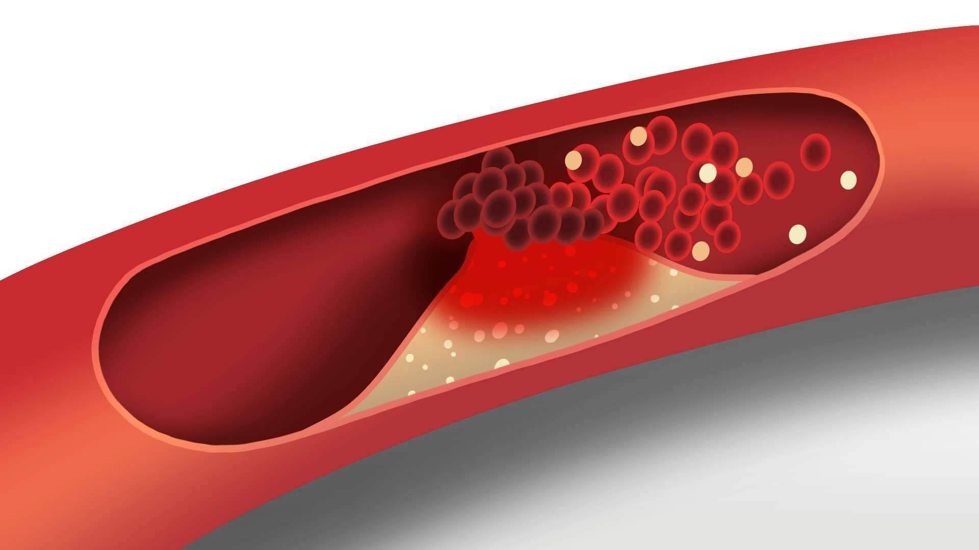В чем разница между холестерином лпвп и лпнп?