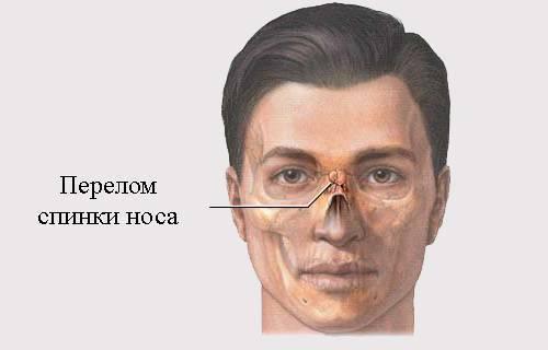 признаки перелома носа у взрослого