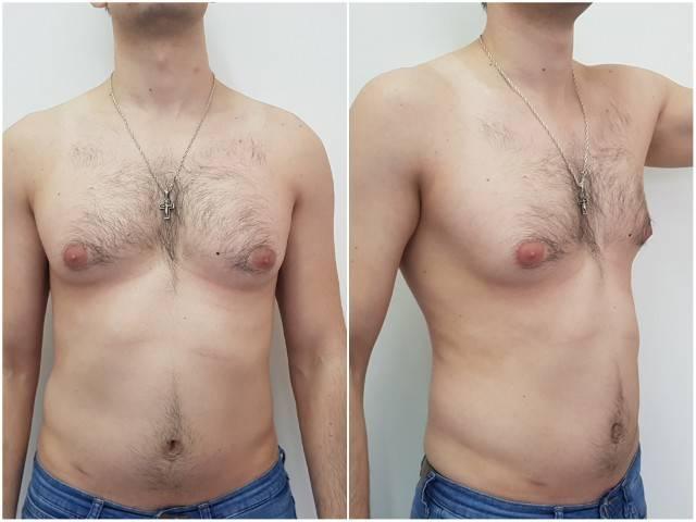 гинекомастия у мужчин операция