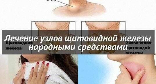 народные средства от щитовидной железы узлы